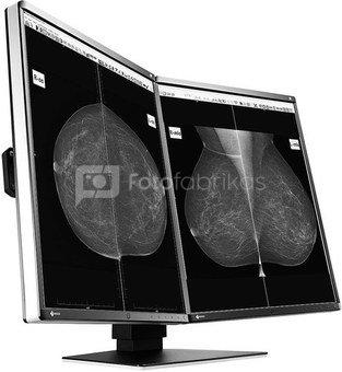 Eizo GX560-MD RadiForce Medicininis monitorius