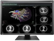 Eizo RX660 RadiForce Medicininis monitorius